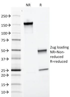 SDS-PAGE Analysis   Purified EpCAM Mouse Monoclonal Antibody (EGP40/1372).  Confirmation of Purity and Integrity of Antibody.