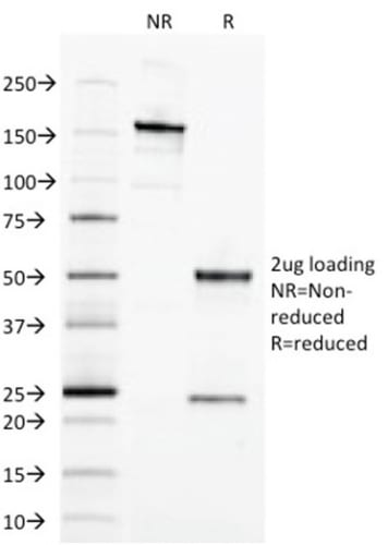 SDS-PAGE Analysis Purified EpCAM Mouse Monoclonal Antibody (EGP40/1373). Confirmation of Purity and Integrity of Antibody.