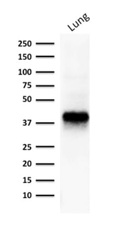 Western blot analysis of human lung lysate using EpCAM Mouse Monoclonal Antibody (EGP40/1373).