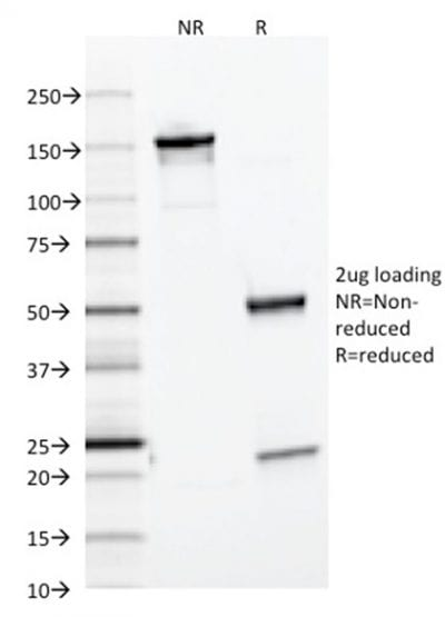 SDS-PAGE Analysis Purified Ferritin Light Chain Mouse Monoclonal Antibody (FTL/1386). Confirmation of Purity and Integrity of Antibody.
