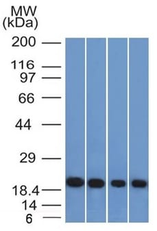 Western Blot of A431 HeLa Liver and Testis Lysate using Ferritin Light Chain Mouse Monoclonal Antibody (FTL/1386).