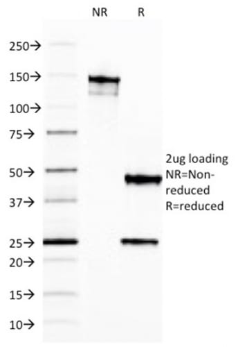 SDS-PAGE Analysis Purified Ferritin Light Chain Mouse Monoclonal Antibody (FTL/1387). Confirmation of Purity and Integrity of Antibody.