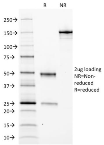 SDS-PAGE Analysis Purified Ferritin Light Chain Monoclonal Antibody (FTL/1388). Confirmation of Purity and Integrity of Antibody.
