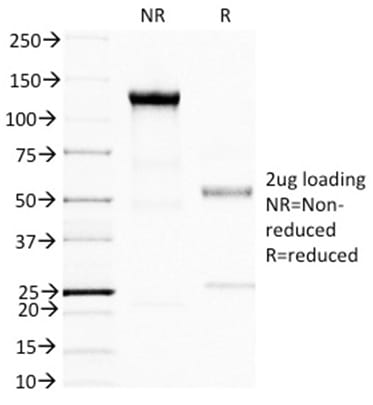 SDS-PAGE Analysis Purified BRCA1 Mouse Monoclonal Antibody (BRCA1/1398). Confirmation of Purity and Integrity of Antibody.