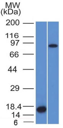 Western Blot Analysis of Recombinant Protein and HeLa Cell Lysate using Factor XIIIa Mouse Monoclonal Antibody (F13A1/1448).