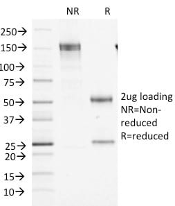 SDS-PAGE Analysis Purified Factor XIIIa Mouse Monoclonal Antibody (F13A1/1448). Confirmation of Purity and Integrity of Antibody.