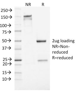 SDS-PAGE Analysis Purified NSE gamma Mouse Monoclonal Antibody (ENO2/1462). Confirmation of Purity and Integrity of Antibody.