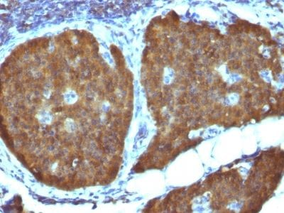 Formalin-fixed paraffin-embedded human Pheochromocytoma stained with NSE gamma Mouse Monoclonal Antibody (ENO2/1462).