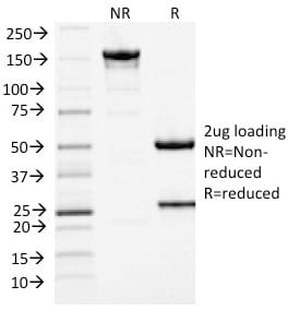SDS-PAGE Analysis Purified MCM7 Mouse Monoclonal Antibody (MCM7/1467). Confirmation of Purity and Integrity of Antibody.