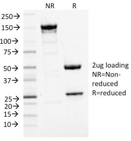 SDS-PAGE Analysis Purified MCM7 Mouse Monoclonal Antibody (MCM7/1468). Confirmation of Purity and Integrity of Antibody.