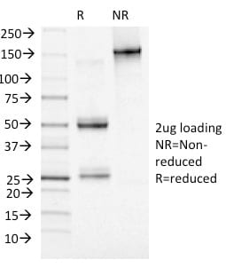 SDS-PAGE Analysis Purified MCM7 Mouse Monoclonal Antibody (MCM7/1469). Confirmation of Purity and Integrity of Antibody.
