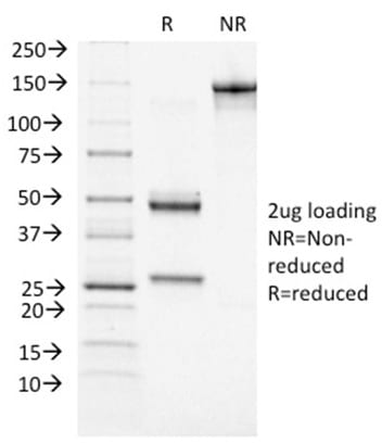 SDS-PAGE Analysis Purified BRCA1 Mouse Monoclonal Antibody (BRCA1/1472). Confirmation of Purity and Integrity of Antibody.