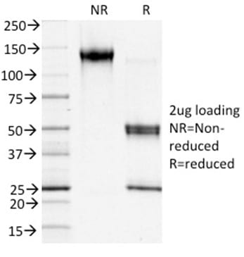 SDS-PAGE Analysis Purified S100A4 Mouse Monoclonal Antibody (S100A4/1481). Confirmation of Purity and Integrity of Antibody.