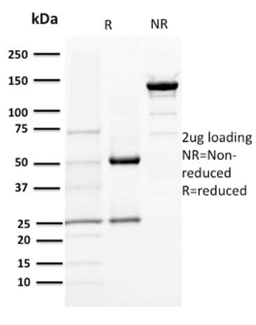 SDS-PAGE Analysis Purified DOG-1 Mouse Monoclonal Antibody (DG1/1484). Confirmation of Purity and Integrity of Antibody.