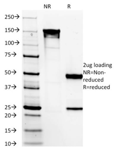 SDS-PAGE Analysis Purified DOG-1 Mouse Monoclonal Antibody (DG1/1485). Confirmation of Purity and Integrity of Antibody.
