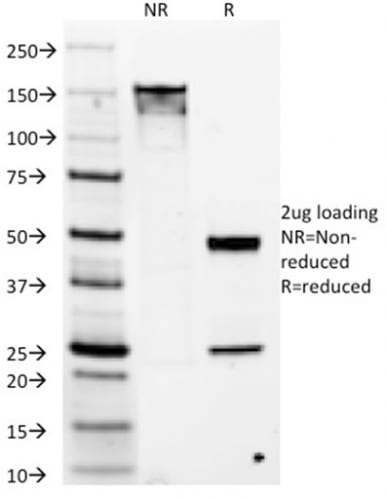 SDS-PAGE Analysis Purified DOG-1 Mouse Monoclonal Antibody (DG1/1486). Confirmation of Purity and Integrity of Antibody.