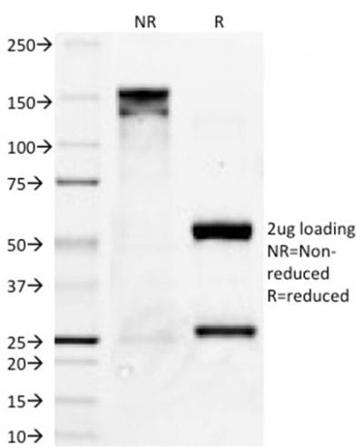 Purified PAX8Mouse Monoclonal Antibody (PAX8/1491). Confirmation of Purity and Integrity of Antibody.