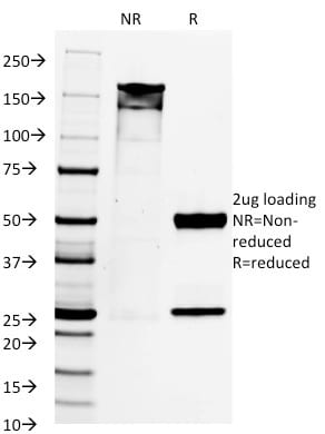 SDS-PAGE Analysis Purified PAX8 Mouse Monoclonal Antibody (PAX8/1492). Confirmation of Purity and Integrity of Antibody.
