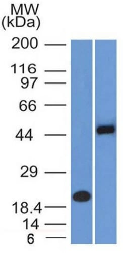 Western Blot Analysis (A) Recombinant Protein (B) Raji Cell Lysate Using PAX8 Mouse Monoclonal Antibody (PAX8/1492).