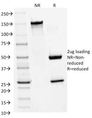 SDS-PAGE Analysis Purified MMP2 Monoclonal Antibody (MMP2/1501). Confirmation of Purity and Integrity of Antibody.