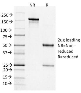 SDS-PAGE Analysis Purified BCL-6 Mouse Monoclonal Antibody (BCL6/1526). Confirmation of Purity and Integrity of Antibody.