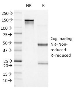 SDS-PAGE Analysis Purified BCL-6 Mouse Monoclonal Antibody (BCL6/1527). Confirmation of Purity and Integrity of Antibody.
