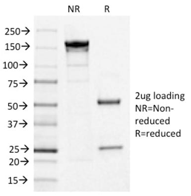 SDS-PAGE Analysis Purified IL3RA/CD123 Mouse Monoclonal Antibody (IL3RA/1531). Confirmation of Purity and Integrity of Antibody.