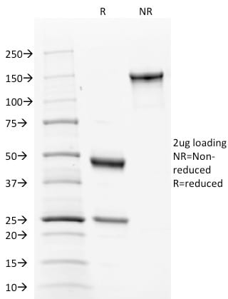SDS-PAGE Analysis Purified Calnexin Mouse Monoclonal Antibody (CANX/1543). Confirmation of Purity and Integrity of Antibody.