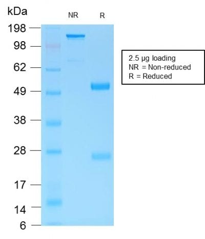 SDS-PAGE Analysis Purified MUC6 Rabbit Recombinant Monoclonal Antibody (MUC6/1553R). Confirmation of Purity and Integrity of Antibody.