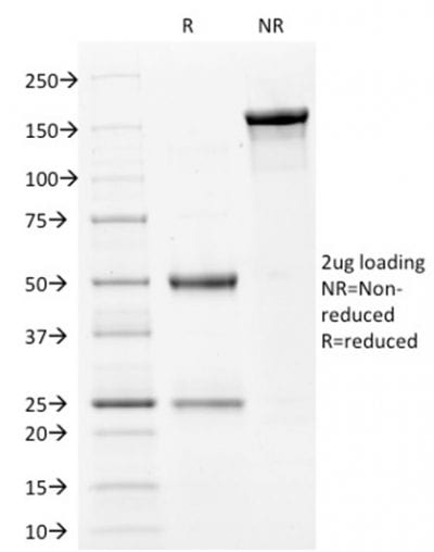 SDS-PAGE Analysis Purified Filaggrin Mouse Monoclonal Antibody (FLG/1561). Confirmation of Purity and Integrity of Antibody.