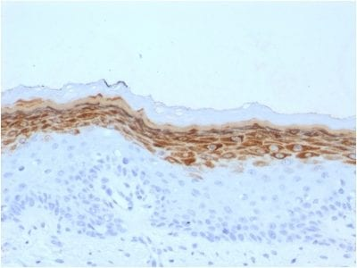 Formalin-fixed paraffin-embedded human Skin stained with Filaggrin Mouse Monoclonal Antibody (FLG/1561).