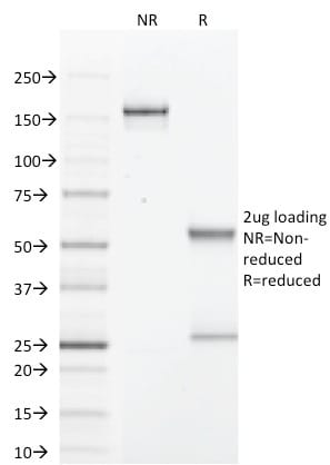 SDS-PAGE Analysis Purified GCDFP-15 Mouse Monoclonal Antibody (PIP/1571). Confirmation of Purity and Integrity of Antibody.