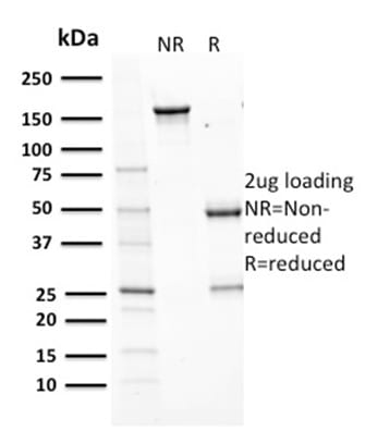 SDS-PAGE Analysis Purified Aurora B Mouse Monoclonal Antibody (AURKB/1593).Confirmation of Purity and Integrity of Antibody.