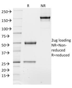 SDS-PAGE Analysis Purified TCF4 Mouse Monoclonal Antibody (TCF4/1705).Confirmation of Purity and Integrity of Antibody.