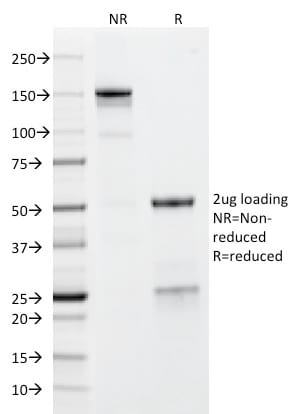 SDS-PAGE Analysis Purified GP2 Mouse Monoclonal Antibody (GP2/1712). Confirmation of Purity and Integrity of Antibody.