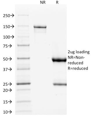 SDS-PAGE Analysis Purified p53 Mouse Monoclonal Antibody (TP53/1739).Confirmation of Purity and Integrity of Antibody.