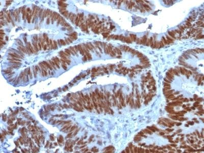 Formalin-fixed paraffin-embedded human Colon Carcinoma stained with p53 Mouse Monoclonal Antibody (TP53/1739).
