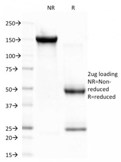 SDS-PAGE Analysis Purified CELA3B Monoclonal Antibody (CELA3B/1757). Confirmation of Purity and Integrity of Antibody.