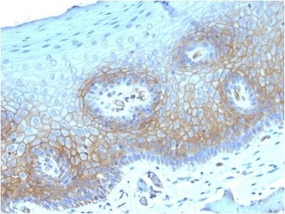 Formalin-fixed paraffin-embedded human CervicalCarcinoma stained with Thrombomodulin/CD141 Mouse Monoclonal Antibody (THBD/1782).