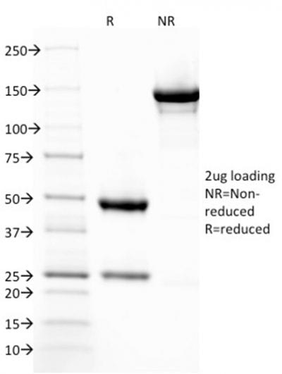 SDS-PAGE Analysis Purified ThrombomodulinMouse Monoclonal Antibody (THBD/1782). Confirmation of Purity and Integrity of Antibody.