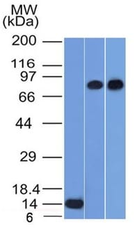 Western Blot of Recombinant PC3 and HeLa Cell Lysates using p63 Mouse Monoclonal Antibody (TP63/1786).