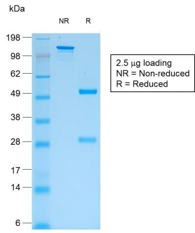SDS-PAGE Analysis Purified IgG Mouse Recombinant Monoclonal Antibody (rIG266). Confirmation of Purity and Integrity of Antibody.