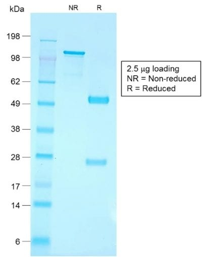 SDS-PAGE Analysis Purified CD79a Rabbit Recombinant Monoclonal Antibody (IGA/1790R). Confirmation of Purity and Integrity of Antibody.
