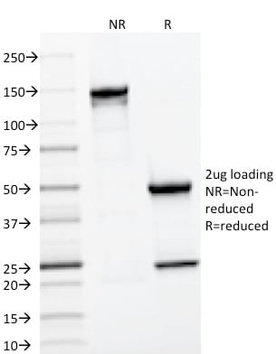 SDS-PAGE Analysis Purified CD22 Mouse Monoclonal Antibody (BLCAM/1796). Confirmation of Purity and Integrity of Antibody.
