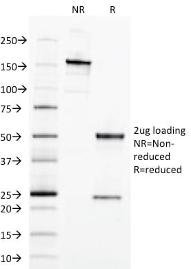 SDS-PAGE Analysis Purified EpCAM Mouse Monoclonal Antibody (EGP40/1798). Confirmation of Purity and Integrity of Antibody.