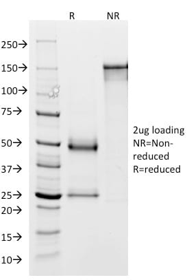 SDS-PAGE Analysis Purified GP2 Mouse Monoclonal Antibody (GP2/1803). Confirmation of Purity and Integrity of Antibody.