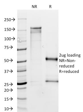 SDS-PAGE Analysis Purified MTAP Mouse Monoclonal Antibody (MTAP/1813).Confirmation of Purity and Integrity of Antibody.