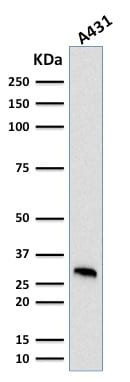Western Blot Analysis of human A431 cell lysate using MTAP Mouse Monoclonal Antibody (MTAP/1813).