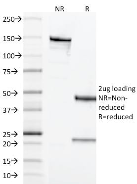 SDS-PAGE Analysis Purified CD68 Mouse Monoclonal Antibody (LAMP4/1830).Confirmation of Purity and Integrity of Antibody.
