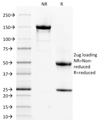 SDS-PAGE Analysis Purified Spectrin alpha 1 Mouse Monoclonal Antibody (SPTA1/1832).Confirmation of Purity and Integrity of Antibody.
